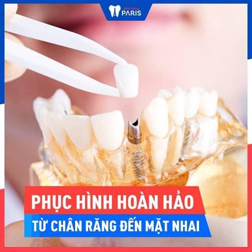 trồng răng hàm với implant