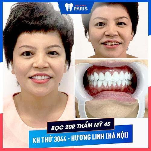 bọc răng sứ bao lâu thì xong
