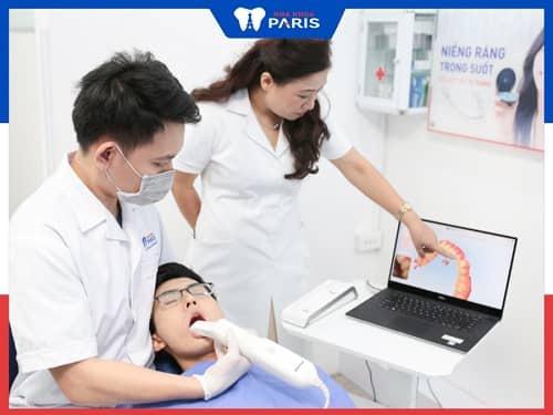 quy trình trám răng cửa thưa