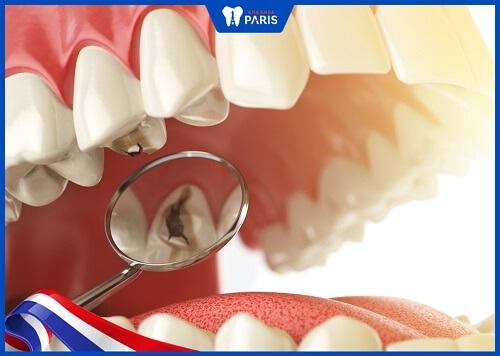 răng trám bị nhức