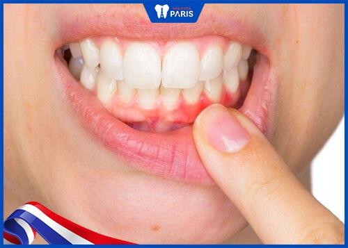 Niềng răng bị yếu do khách hàng thiếu xương hàm