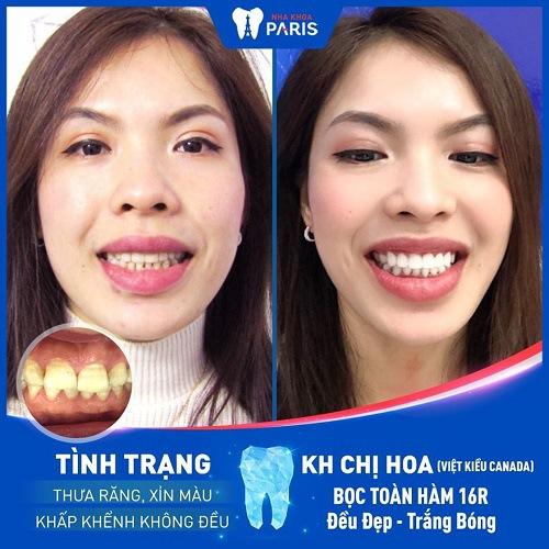 thẩm mỹ răng sứ venus