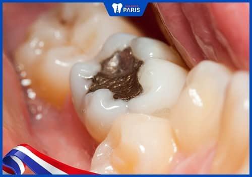 hàn răng số 6 không nên dùng amalgam
