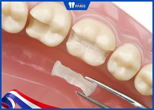 răng cấm bị sâu có trám được không