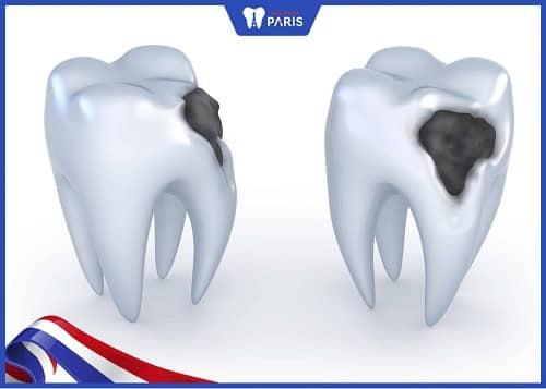 hàn răng cấm khi bị sâu