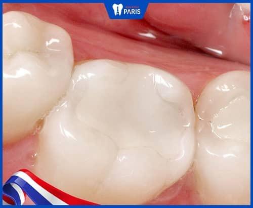 trám răng số 6 nên dùng composite