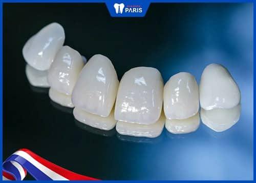 trồng răng cấm bằng sứ