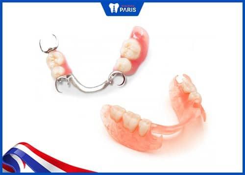trồng răng cấm giả