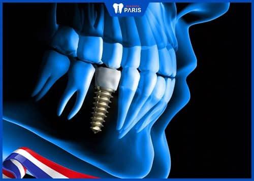 trồng răng cấm implant