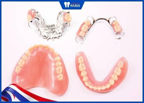 cách trồng răng cửa