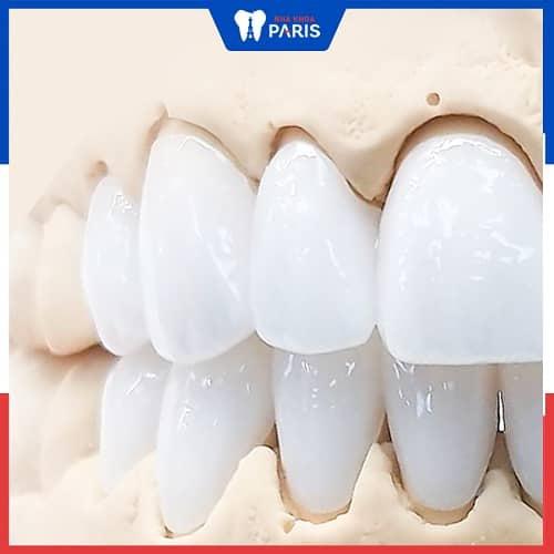 trồng răng hàm nên chọn loại răng sứ nào