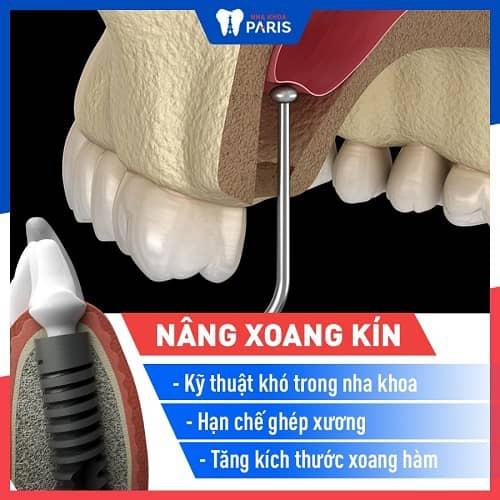 có thể phải ghép xương, nâng xoang khi trồng răng hàm