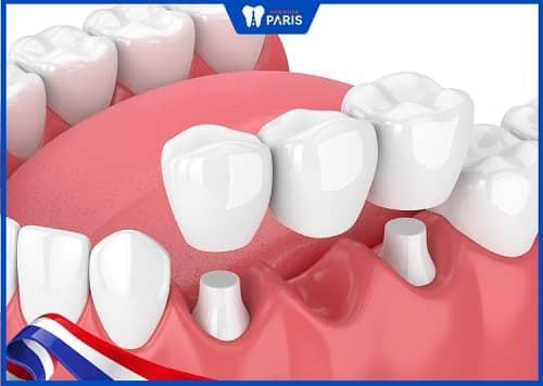 trồng răng hàm với cầu răng sứ