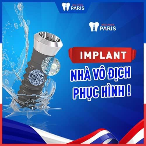 nên chọn implant để trồng răng hàm