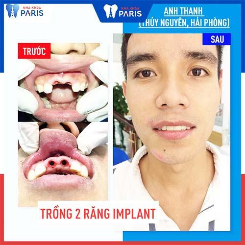 trồng răng implant ở hải phòng