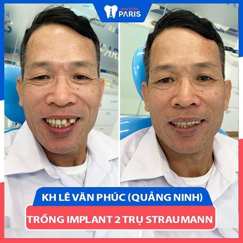 trồng răng implant tại hà nội