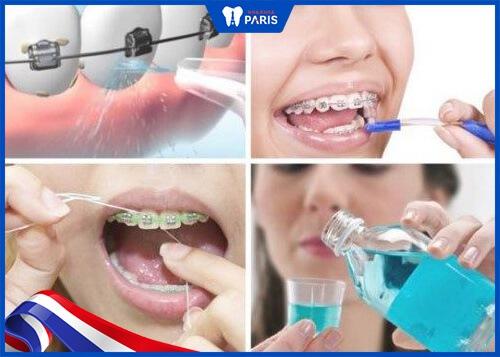 Chú trọng chăm sóc vệ sinh răng miệng khi niềng