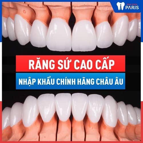trồng răng khểnh bằng phương pháp nào