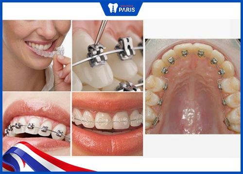 các loại niềng răng móm