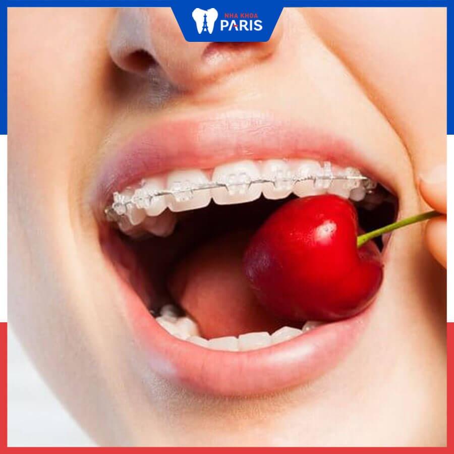 Hóp má thái dương khi niềng răng