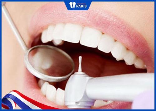 mài răng hô có ảnh hưởng gì không