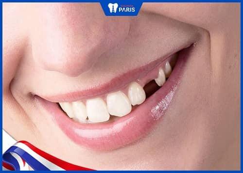 mất răng nanh