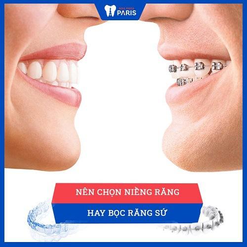 Niềng răng hay bọc răng sứ