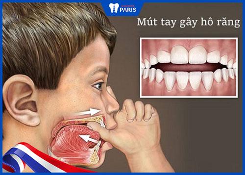 nguyên nhân răng hô vẩu