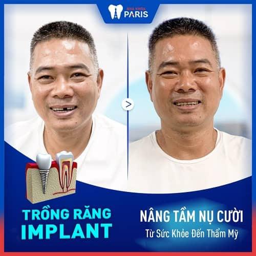 ưu nhược điểm khi trồng răng implant