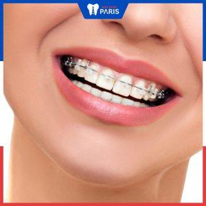 Có thể niềng răng 1 hàm không