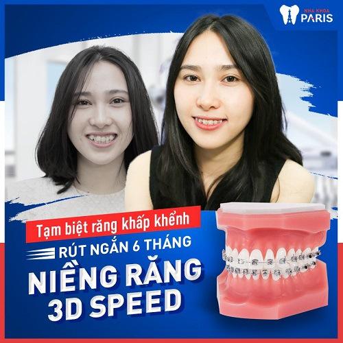 Niềng răng giúp cải thiện tổng thể sức khỏe