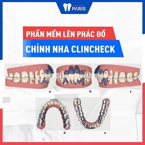 niềng răng giữ lại răng khểnh