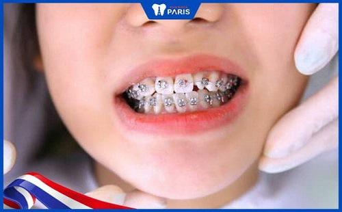 Thực hiện niềng răng giúp trẻ bớt hôi miệng