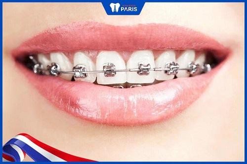 Niêng răng giúp giảm tỷ lệ sâu răng hoặc mắc bệnh răng miệng