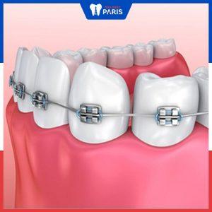 Chỉ niềng răng hàm dưới thì có hiệu quả không