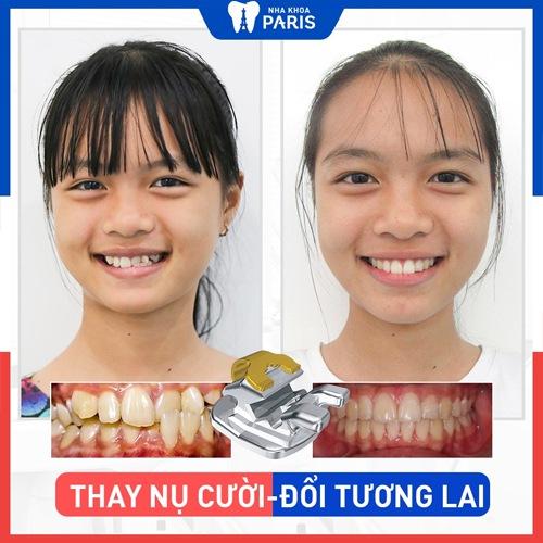niềng răng hô ảnh khách hàng
