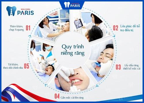 Sau khi kết thúc niềng răng, bạn sẽ được sử dụng hàm duy trì để đảm bảo kết quả chỉnh nha của mình.