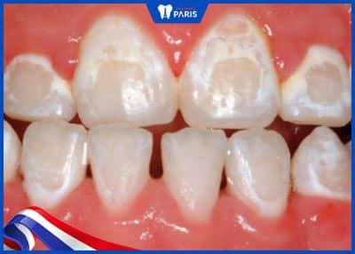 niềng răng có nguy hiểm không