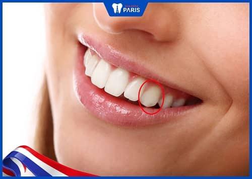răng nanh là gì