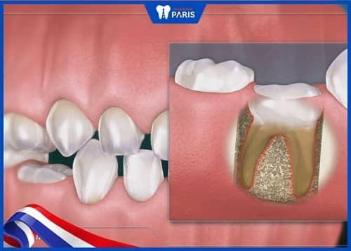 niềng răng có hại gì không