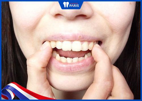 tác hại của răng hô