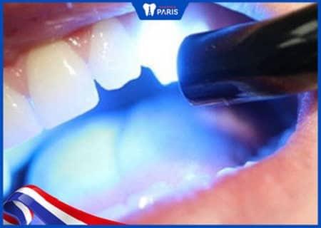 trám răng nanh với composite
