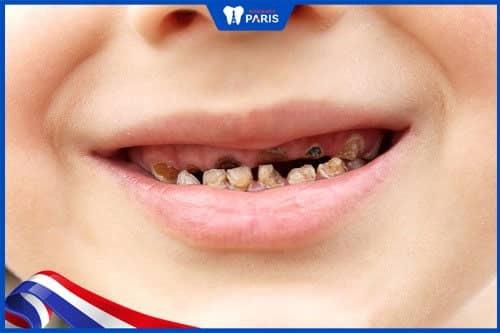 trẻ bị hôi miệng do sâu răng