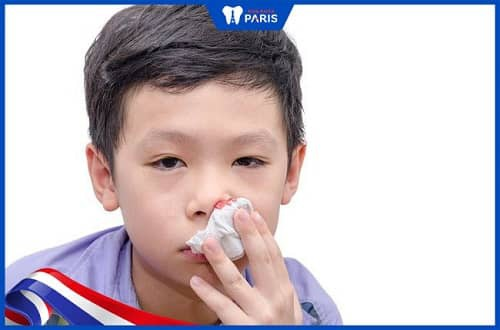 do có dị vật trong mũi khiến trẻ bị hôi miệng