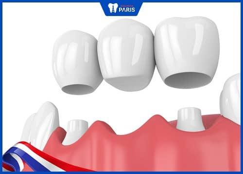 trồng răng nanh với cầu răng sứ