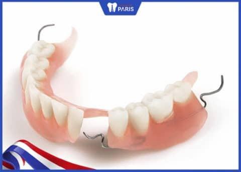 trồng răng nanh với hàm tháo lắp