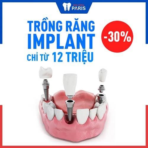 giá làm răng nanh bằng implant