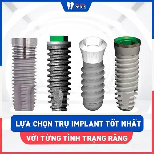 sức mạnh - ưu điểm của công nghệ implant 4s