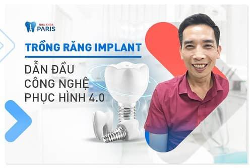 công nghệ cấy răng implant 4s rất ổn định