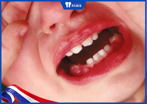 Cách xử lý khi Chân răng sữa còn sót lại bị viêm